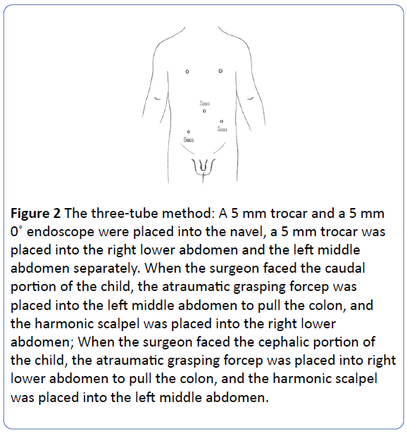 archivesofmedicine-three-tube-method